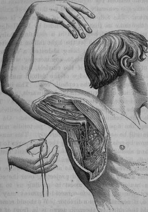 Axillary anatomy surgical