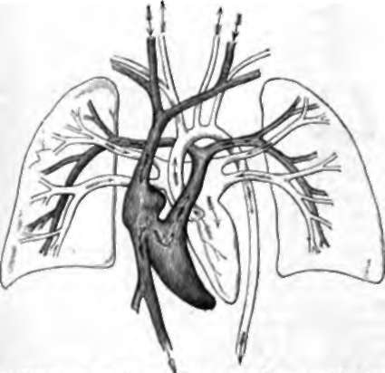 Diagram of Human Heart and Vessels. To the rides are the lungs represented