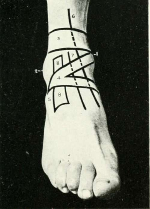 The Anterior Annular Ligament Of The Ankle